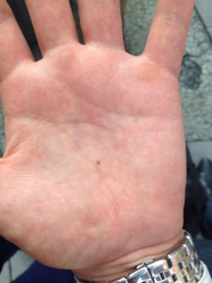 手相のホクロの意味!手の平の金星丘・火星平原(真ん中)の意味や消し方・右手・左手の意味